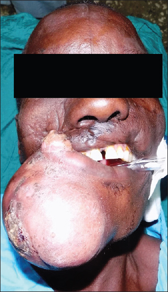 Figure 1: A globular right facial mass with hypopigmented overlying skin